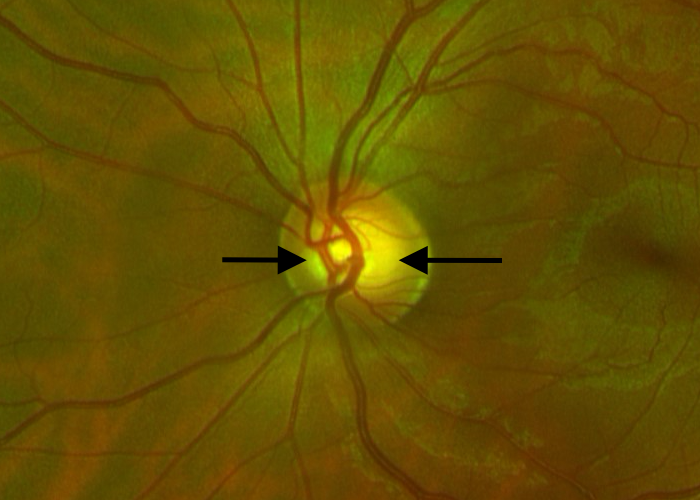 Glaucoma suspect optic nerve